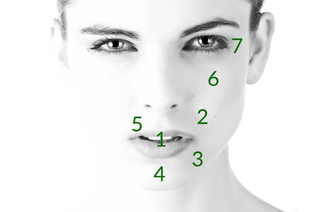 Behandlungbereiche Hyaloron Behandlungsareale
