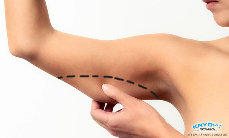 Kryolipolyse-Behandlung am Oberarm im KryoFit-Studio Hof