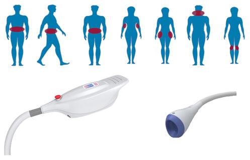 Kryolipolyse - Behandlungszonen und Sensoren