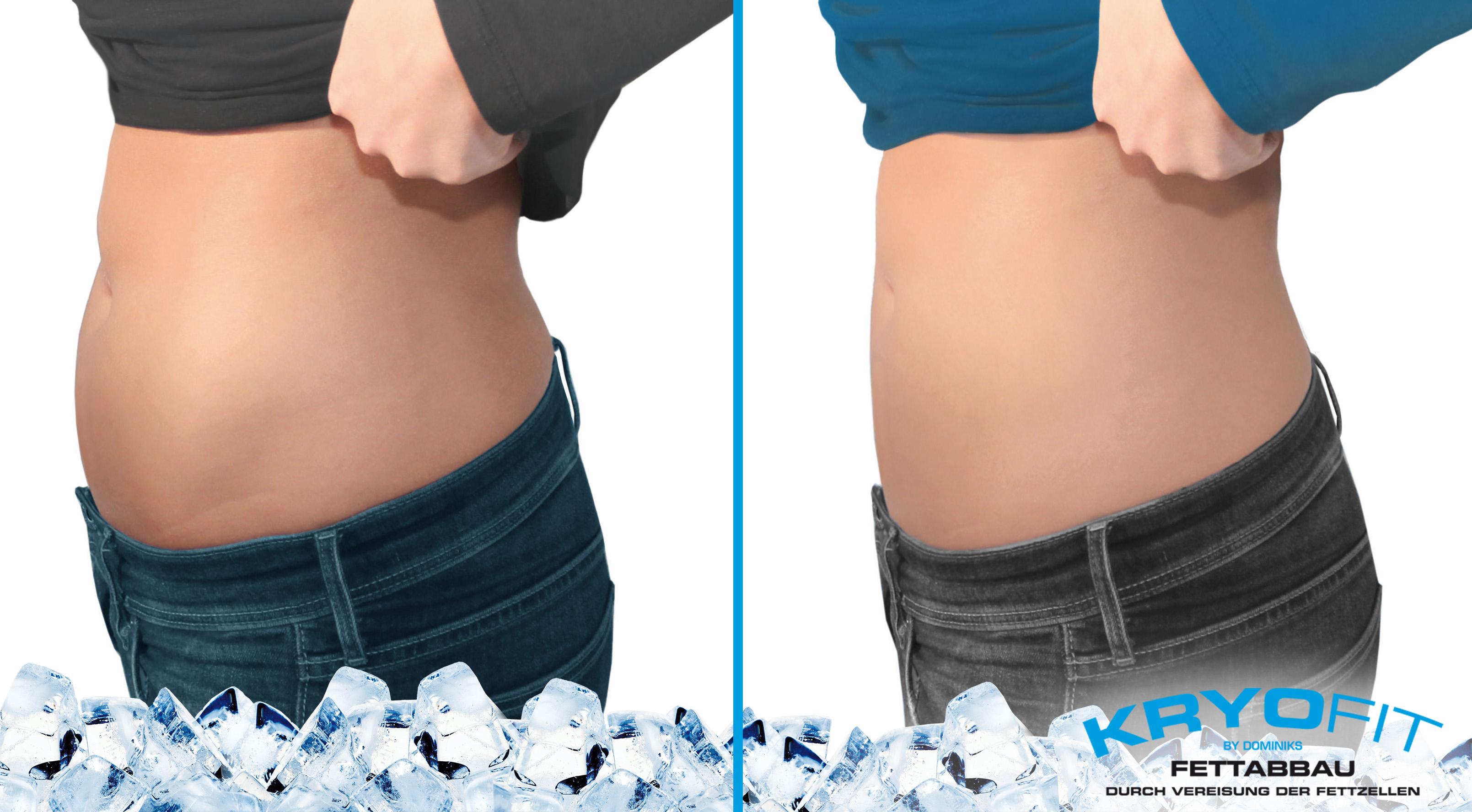Kryolipolyse-Behandlung-Bauch-vorher-nachher