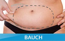 Kryolipolyse-Behandlungsbereiche-Abnehmen-am-Bauch