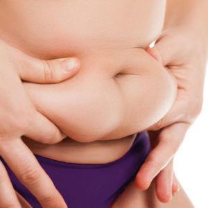 Kryolipolyse Fett entfernen am Bauch